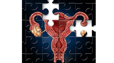 Mioma e Infertilidade